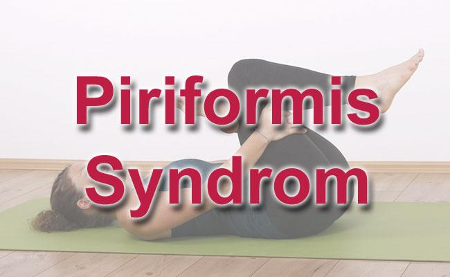 Piriformis Syndrom in den Griff bekommen